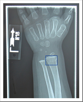 X-ray of Fracture